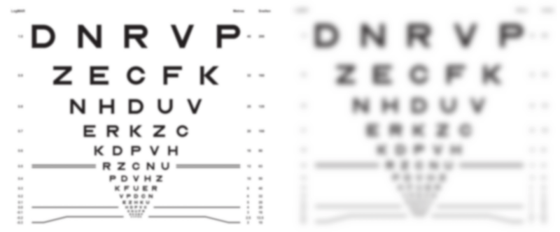 An eye chart viewed with refractive error of -2 dioptres but different pupil diameters